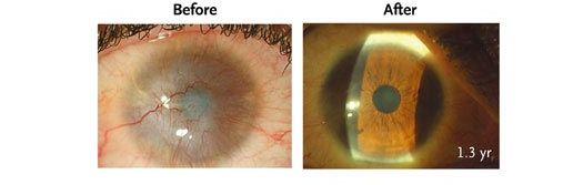 Stem Cells Shown to Restore Sight To Eyes Damaged By Burns
