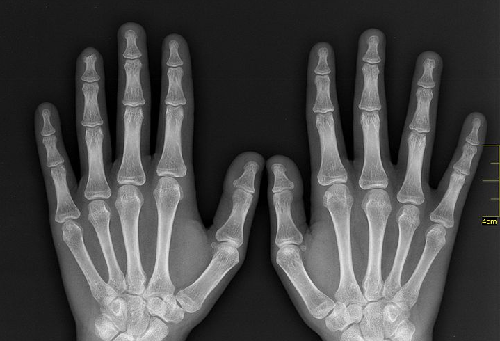 Scientists Are Putting The X Factor Back In X Rays Popular Science All png images can be used for. popular science
