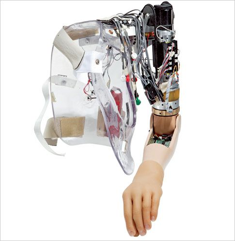 Neuro-Controlled Bionic Arm | Popular Science