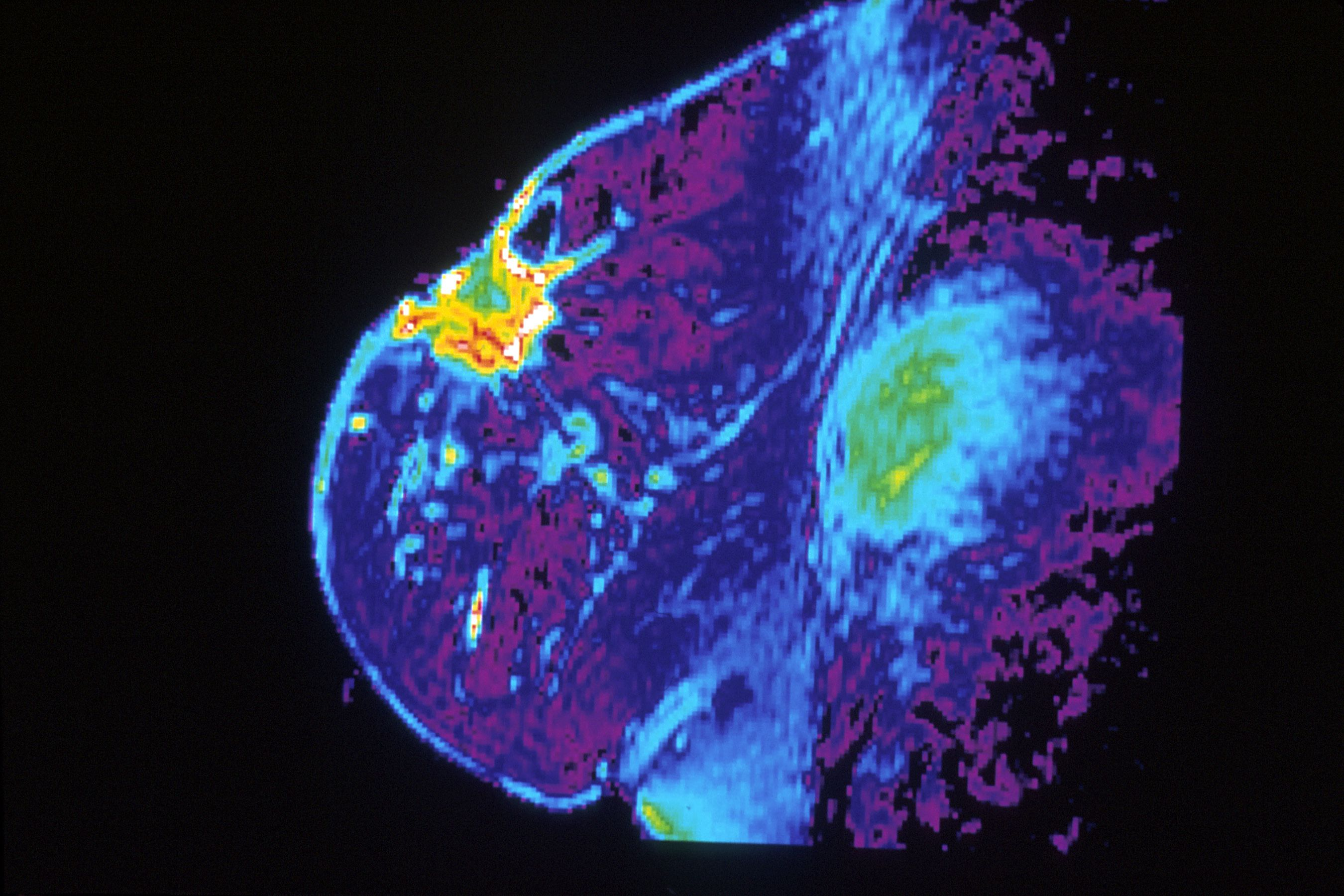 Why Theres Disagreement Over Screening >> The Confounding Commandments Of Cancer Screening Popular Science